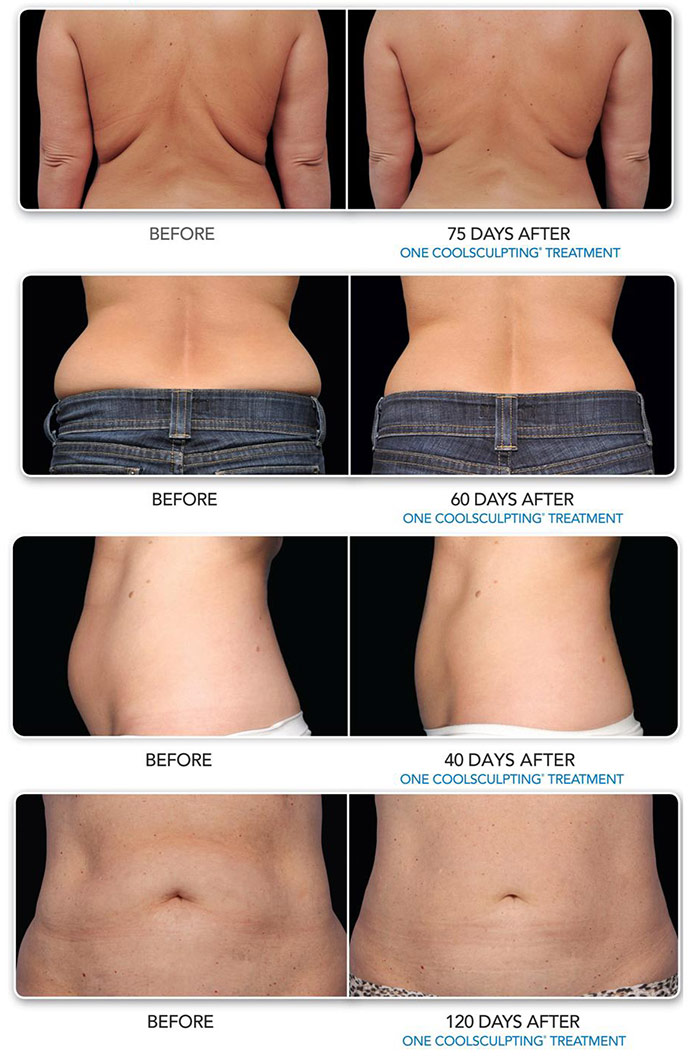 Coolsculpting | Forever Young Skincare Clinic in Onalaska, WI